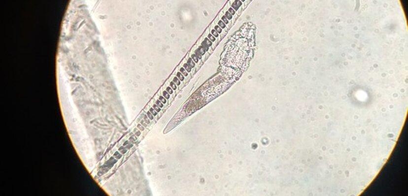 Svi ih imamo na licu, izgledaju odvratno pod mikroskopom, a da li su opasne?
