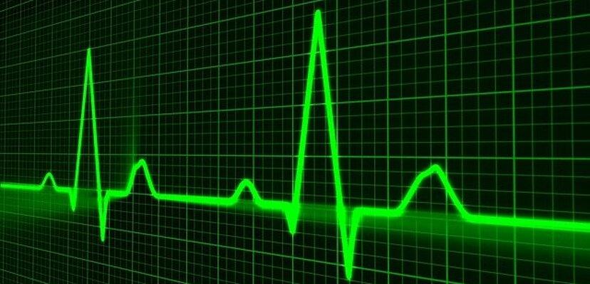 Još jedan razlog da povedemo računa tokom pandemije: Autori nove studije analizirali demografiju povećanja smrtnih slučajeva usled drugih bolesti